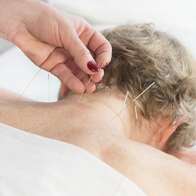 Arizzi Chiropractic Offers Acupuncture in Middleton MA